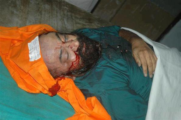 Dead Body Of Jaspal Bhatti